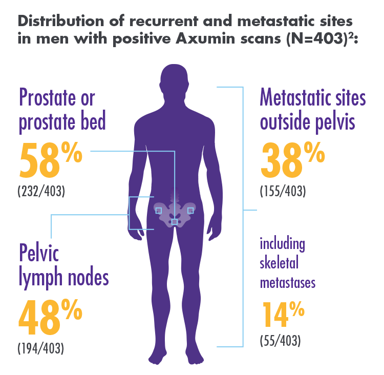 Axumin can detect recurrence in the prostate or prostate bed in 39% of scans, pelvic lymph nodes in 33%, metastatic sites outside of the pelvis in 26%, and skeletal involvement in 9%