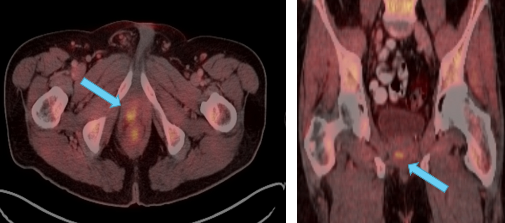 Focal hyperattenuating nodule within the right lobe of the prostate gland seen with a max SUV of 5.3