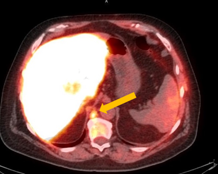 Positive Axumin PET/CT scan revealing retrocrural lymph node malignant uptake