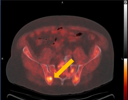 Positive Axumin PET/CT scan revealing right ilium skeletal uptake
