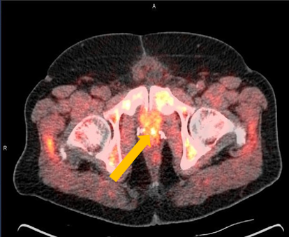 Positive Axumin PET/CT scan revealing left prostatectomy bed uptake